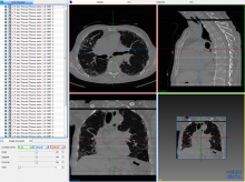 DICOM-fragmented.png (1×1 px, 1 MB)